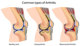 Common types of arthritis Royalty Free Stock Image