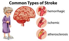 Common Types of Stroke stock illustration
