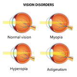 Common vision disorders. Royalty Free Stock Photo