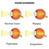 Common vision disorders. Stock Image