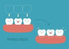Como das cintas invisíveis pelo ilustrador do conceito do dente Fotos de Stock Royalty Free