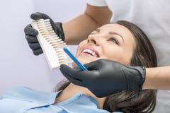 Comparação da cor dos dentes Imagem de Stock Royalty Free