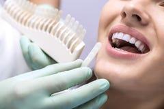 Comparação da cor dos dentes Fotos de Stock Royalty Free