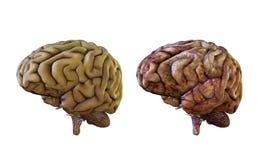 Comparação do cérebro humano saudável e inflamada, danificado ilustração do vetor