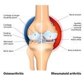 Comparación de la osteoartritis y de la artritis reumatoide Fotografía de archivo libre de regalías