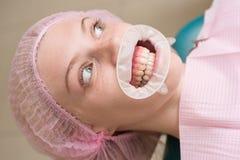 Comparaison après des dents blanchissant Faites les modèles et les mesures pour les appareils dentaires, tels que des dentiers, a images stock