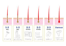Comparaison des méthodes populaires d'épilation : laser, epilator, cirant, rasage, shugaring, Images libres de droits