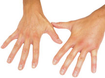 Comparando las manos masculinas hinchadas aisladas en el fondo blanco Imagenes de archivo