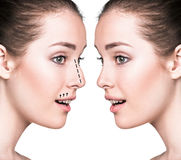 Comparative portrait of female face. Before and after plastic surgery of the nose Royalty Free Stock Photos