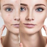 Compare of old photo with acne and healthy skin. Royalty Free Stock Photos