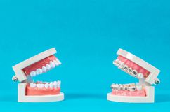 Compare tooth model and tooth model with metal wire dental brace royalty free stock photography
