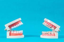 Comparez le modèle de dent et le modèle de dent à la bague dentaire de fil en métal photographie stock libre de droits