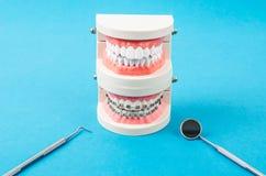 Comparez le modèle de dent et le modèle de dent aux bagues dentaires de fil en métal image libre de droits