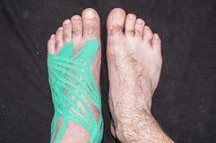 Comparez le pied à attacher du ruban adhésif à des tranches et sain Photographie stock