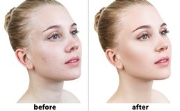 Portrait of woman before and after retouch. stock photo
