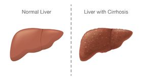 The Comparison between Healthy liver and Cirrhosis. Royalty Free Stock Photography