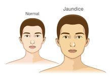 The Comparison between normal skin people and yellowing from Jaundice. Stock Photography