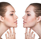 Comparison portrait of problematic skin. Comparison portrait of a woman with problematic skin before and after treatment Stock Photo