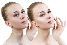 Young woman with acne before and after retouch. Comparison portrait of young girl with acne before and after retouch Stock Images