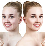 Young woman with acne before and after retouch. Stock Photo