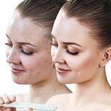 Young woman with acne before and after treatment. Royalty Free Stock Photo