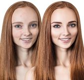 Young woman with acne before and after treatment. Stock Photo