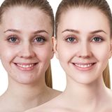 Young woman with acne before and after treatment. Comparison portrait of young girl with acne before and after treatment and make-up Stock Image