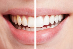 Comparison of teeth before. And after bleaching session stock photos