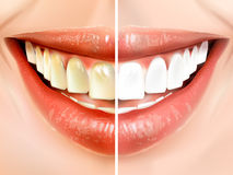 Comparison of teeth Stock Image