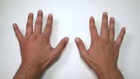 Comparison of two male hands stung by bee or wasp. Hand swelling, inflammation, redness are signs of infection. Insect bite on. Left hand on blue background stock footage