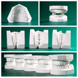 Compilation picture of dental study models Stock Images