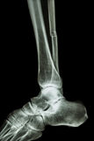 Complete fracture shaft of fibula (leg's bone) Royalty Free Stock Photo