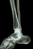 Complete fracture shaft of fibula (leg's bone) Royalty Free Stock Photo