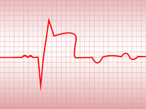 Complex of ECG. On thermal paper, acute myocardial infarction, illustration, vector Royalty Free Stock Photos