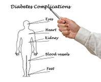 Complicaciones de la diabetes foto de archivo libre de regalías