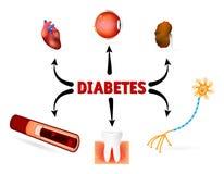 Complicaciones de la diabetes mellitus Foto de archivo libre de regalías