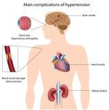 Complicaciones de la hipertensión Imagen de archivo libre de regalías