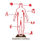 Complications des diabètes dans de grosses personnes Illustration dans le style d'Infographic au sujet de médical et de la santé Photographie stock libre de droits