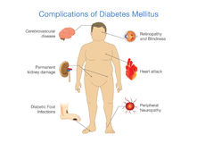 Complications of Diabetes Mellitus. Complications of Diabetes Mellitus in fat people. Illustration in Infographic style about medical and health Royalty Free Stock Photo
