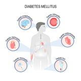 Complications of diabetes mellitus royalty free illustration