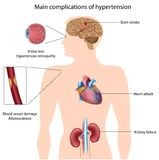 Complications of hypertension Royalty Free Stock Image