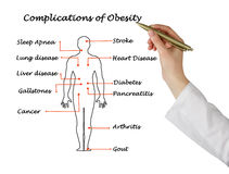 Complications of Obesity. Presenting diagram of Complications of Obesity stock photos