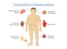 Free Complications Of Diabetes Mellitus. Royalty Free Stock Photo - 94782225