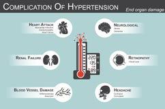 Complicazione di ipertensione Immagine Stock