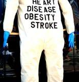 Complicazioni di peso eccessivo Fotografia Stock
