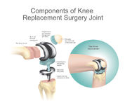 Components of knee replacement surgery joint Stock Photo
