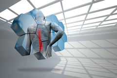 Composite image of back injury diagram on abstract screen Stock Photography