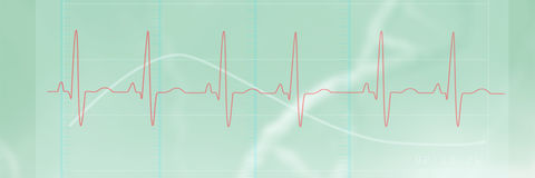 Composite image of digitally generated image of electrocardiography 3d Stock Photography