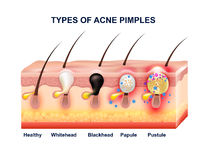 Composition en anatomie d'acné de peau Photographie stock libre de droits