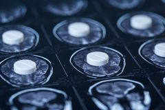 Comprimidos, tabuletas e ressonância magnética e filme de raio X rese fotografia de stock